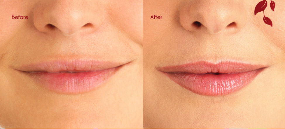Permanent makeup charlie 39 s salon and spa for Permanent lip tattoo
